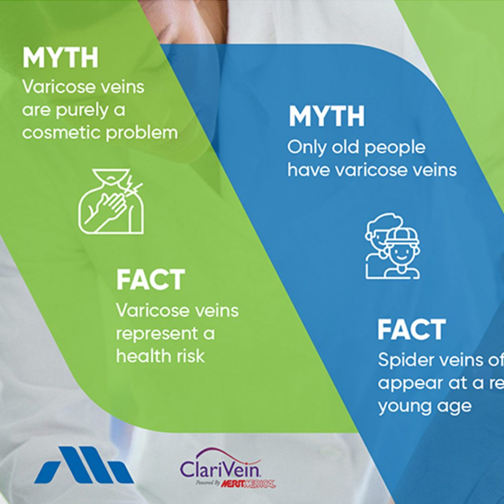 Though varicose veins are common, there are often…